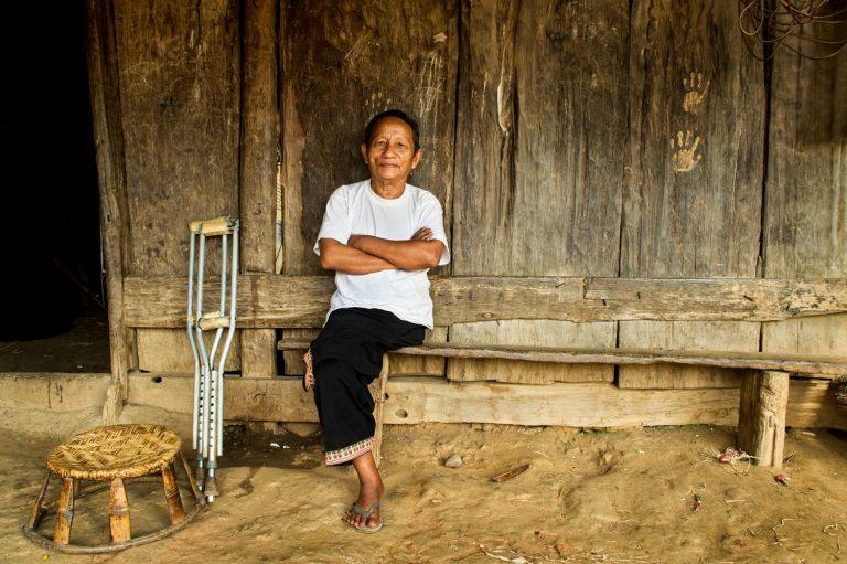 Portfolio of KevinLJ © Kevin Landwer-Johan Hmong Amputee
